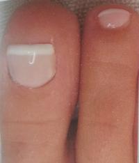 nagelreparatie2